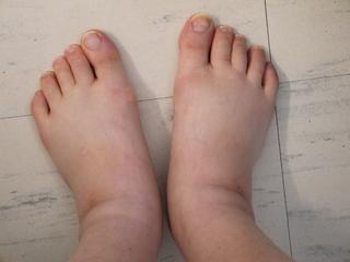 Hospitalizing-foot