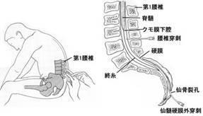 190624 脊椎麻酔