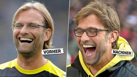 klopp before and after hair transplant