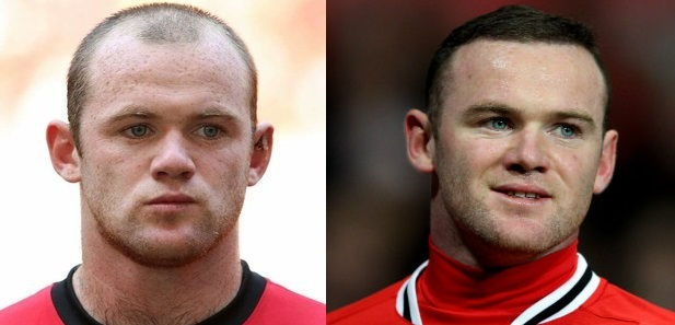 Wayne Rooney before and after hair transplant