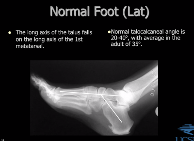 N-talocalcaneal-A.png