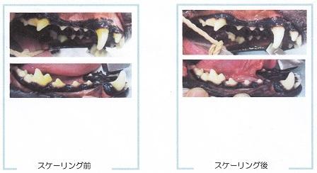 病院12222018歯石除去5