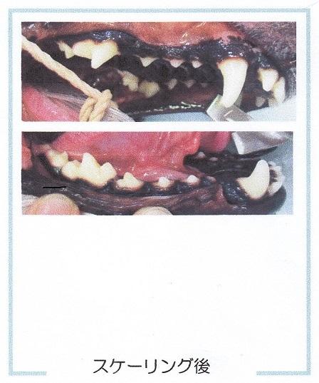 病院12222018歯石除去7