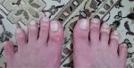 足の小指の靭帯損傷の拡大