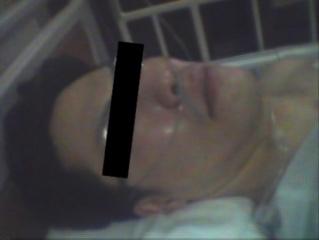 胃ガン治療中の写真