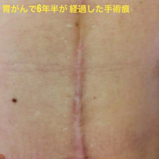 胃ガンで胃全摘した手術痕、術後6年半経過後