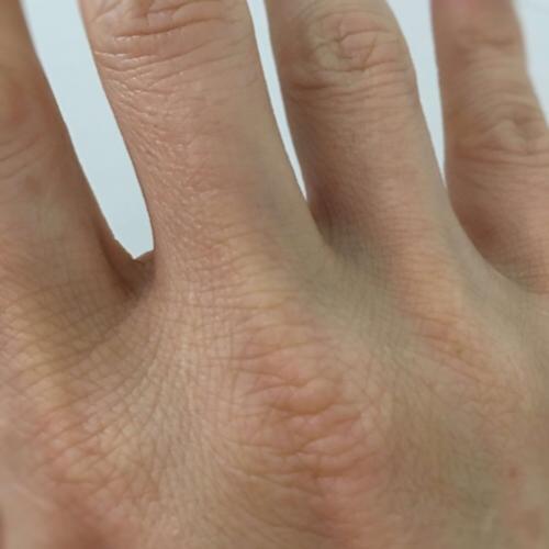これ…病気の危険信号?気づいたら「爪の色」が変わってた!原因は?